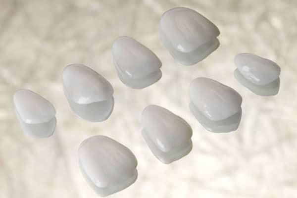 Closeup of Porcelain Veneers