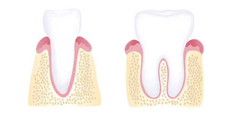 Healthy gums illustration